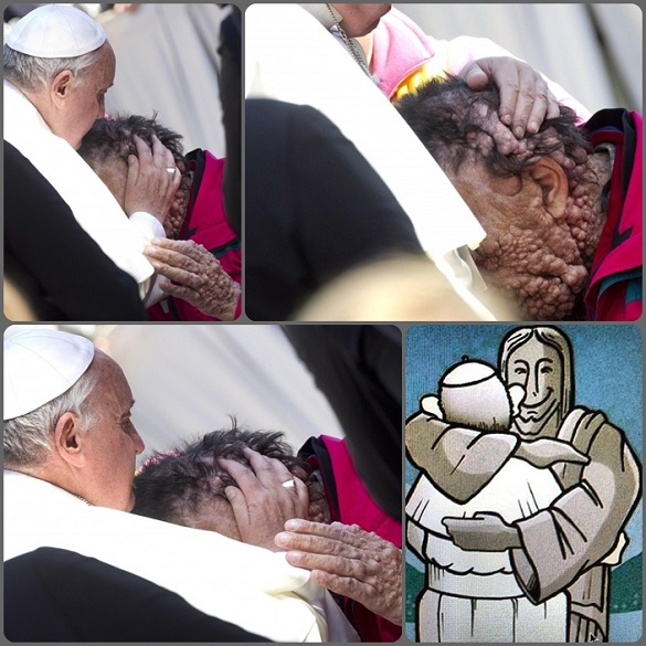 Grande commozione per l'immagine di Papa Francesco che, prima dell'udienza generale del 6 novembre, ha abbracciato e baciato un uomo sfigurato dalla grave malattia chiamata neurofibromatosi. Il Papa si è avvicina all'uomo sfigurato dalla malattia, lo ha abbracciato, poggiando le labbra e le mani sui punti di maggior deturpamento. - Così Papa Francesco ha abbracciato lo stesso Cristo.